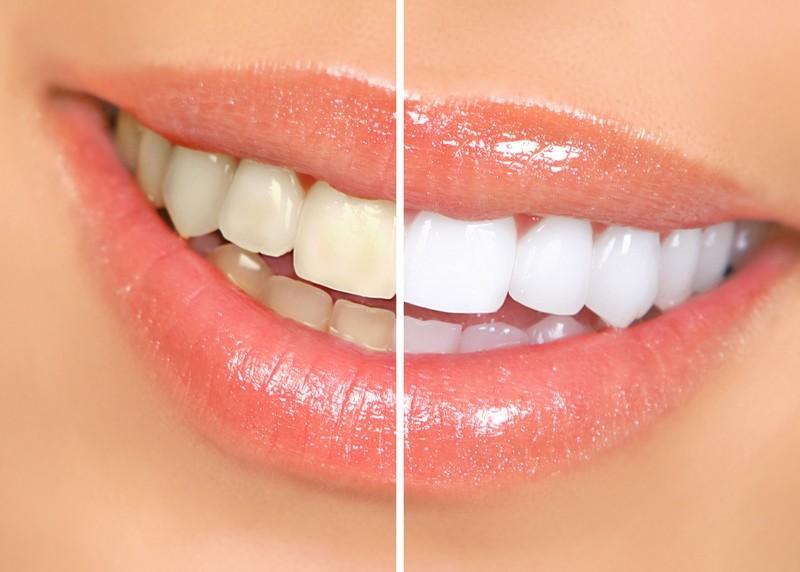 Teeth Whitening  San Diego, CA